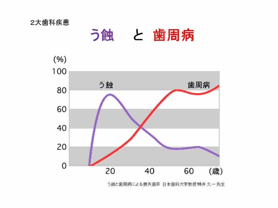 %e3%82%b9%e3%83%a9%e3%82%a4%e3%83%893